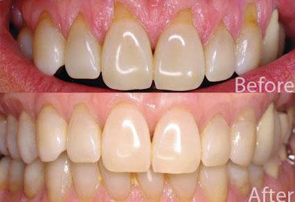 terapia-parodontale